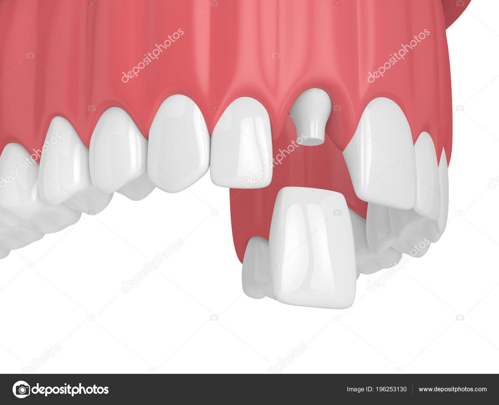 incisivo dental incisivo lateral