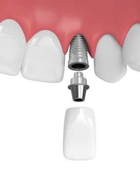 3d render of upper jaw with teeth and dental lateral incisor implant over white background