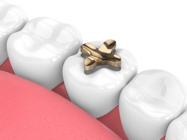 3d render of teeth with dental inlay golden filling over white background stock vector
