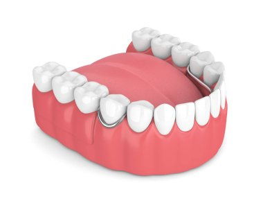 3d render of removable partial denture isolated over white background stock vector