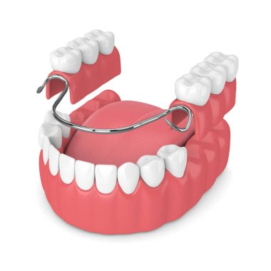 3d render of removable partial denture isolated over white background