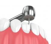 3D-Rendering des Kiefers mit Zahnhandstück und Bohrer isoliert über Weiß