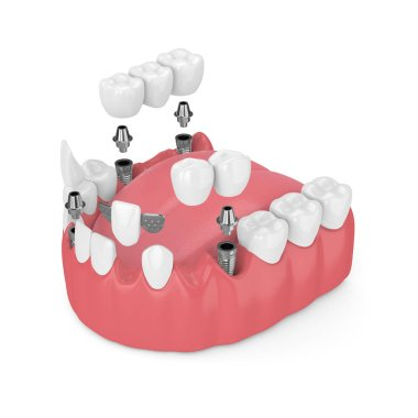 3d render of jaw with dental implants and bridges over white background stock vector
