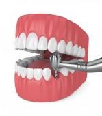 3d Render des Kiefers mit Zahnimplantatbohrer. Implantationsprozesskonzept.