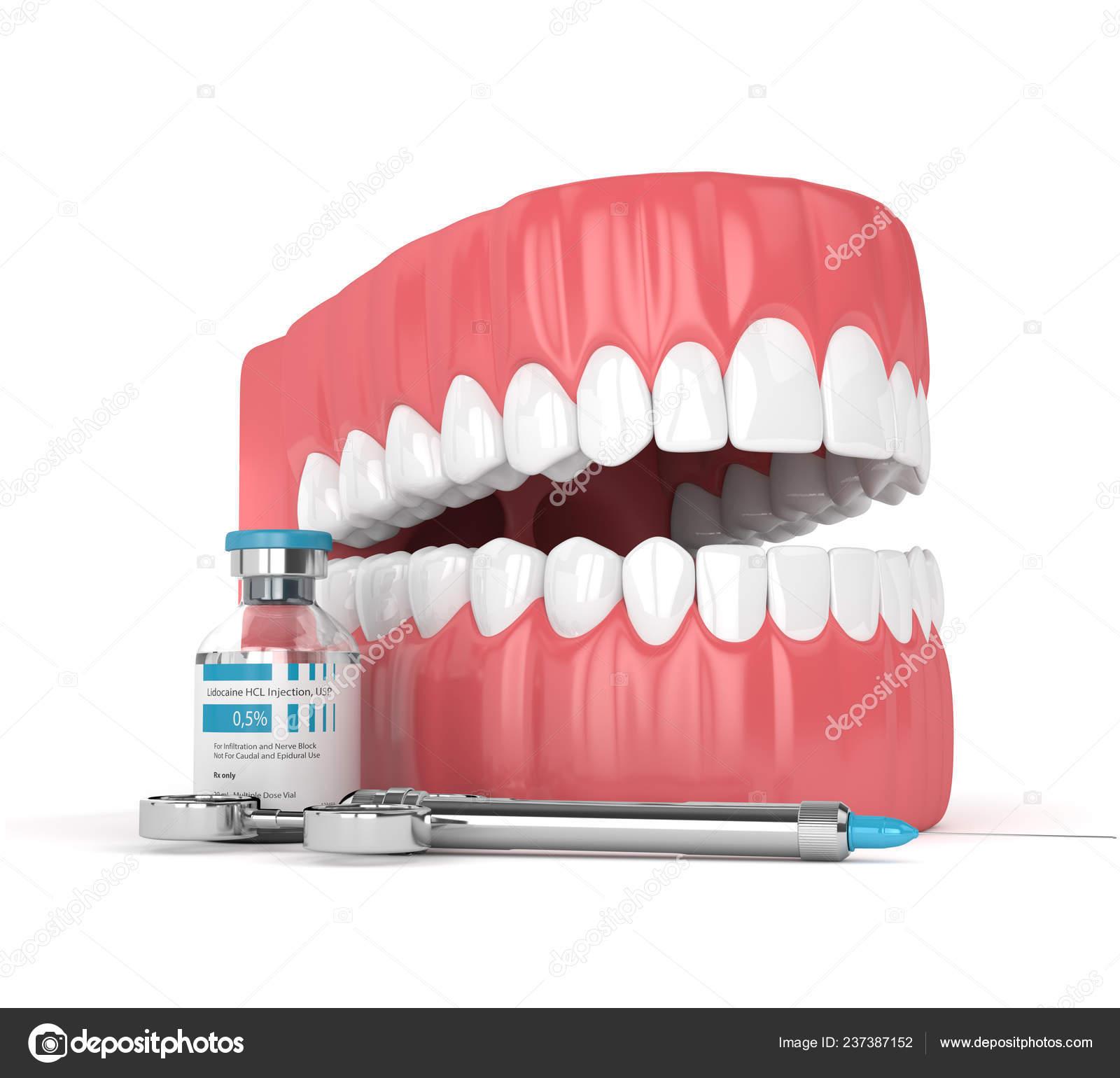 Render Jaw Lidocaine Syringe White Background Dental Anesthesia