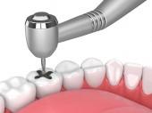 3D-Rendering des Kiefers mit Zähnen, Zahnhandstück und Bohrer isoliert über Weiß