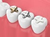 3D-Rendering des Kiefers mit Zähnen und drei Arten von Einlagen über Weiß