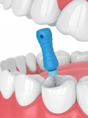3d render of tooth with endodontic file in jaw