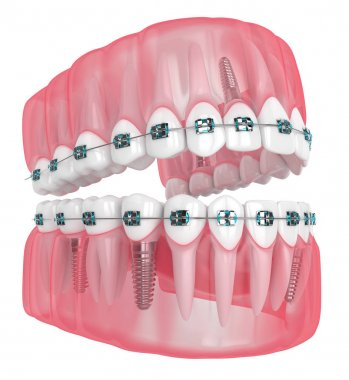 3d render of jaw with implants and orthodontic braces isolated over white background stock vector