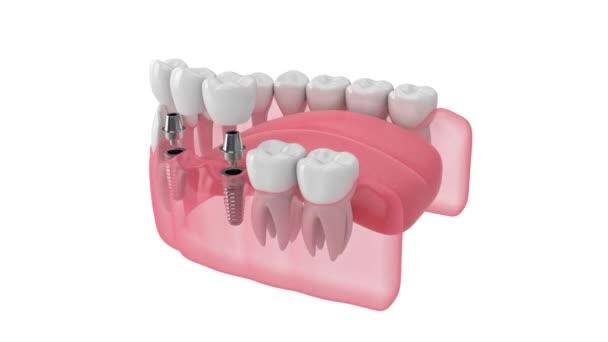 Kiefer und Implantate mit Zahnbrücke