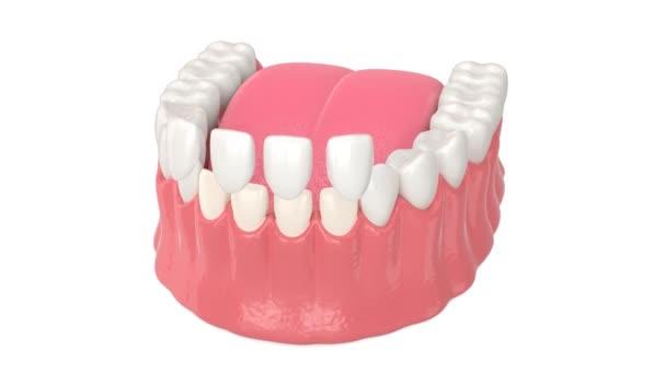 Dolní čelist s instalací zubní dýhy přes bílé pozadí