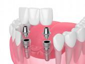 Fotografie Kiefer mit Implantaten, die Zahnbrücke über weißem Hintergrund stützen