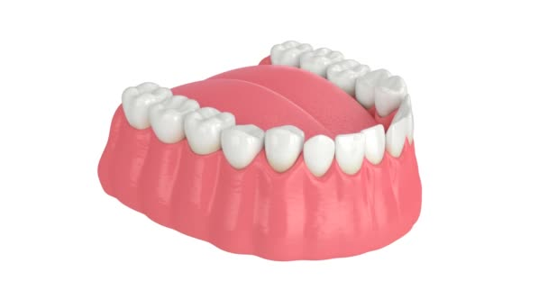 Abnormal teeth position. Orthodontic treatment concept.