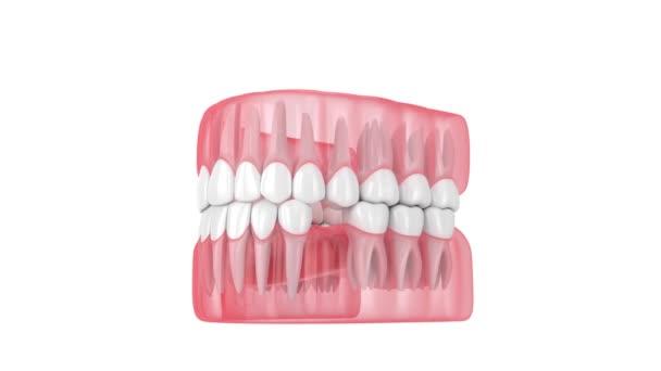 Zuby kloužou k oblasti chybějícího zubu. Důsledky ztráty zubů.
