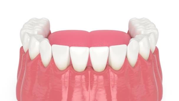 Lidská dolní čelist s otevřenou dásní