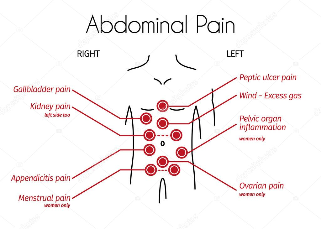 Abdominal Pain Types Linear Infographic Young Person With Red Spots On The Tummy Shows Different Types Of Pain Design Template For Medicine Or Therapy For Stomach Ache Appendicitis Menstrual Pain Premium