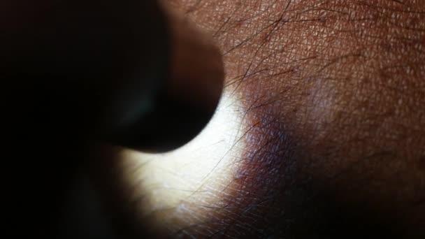 szőrös bőr közelről