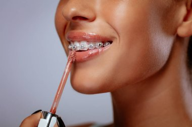 Smiling young woman with braces applying lip gloss on lips