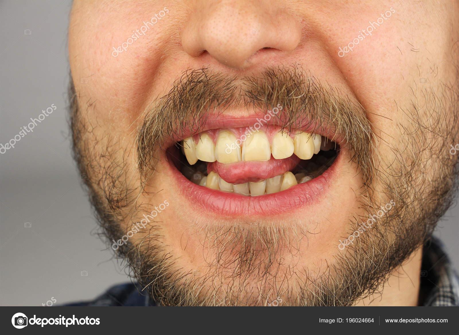 Homme Avec Une Barbe Mord Bout Langue Avec Ses Dents Photographie
