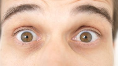 Close-up of a surprised emotional man with brown eyes