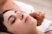 Photo Beautiful Young Woman Getting Acupuncture Treatment In Beauty Spa