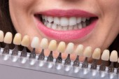 Fotografie Close-up Of A Smiling Woman Holding Set Of Implants With Various Shades Of Tone