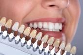 Fotografie Detail šťastná žena odpovídající odstín zubů implantáty