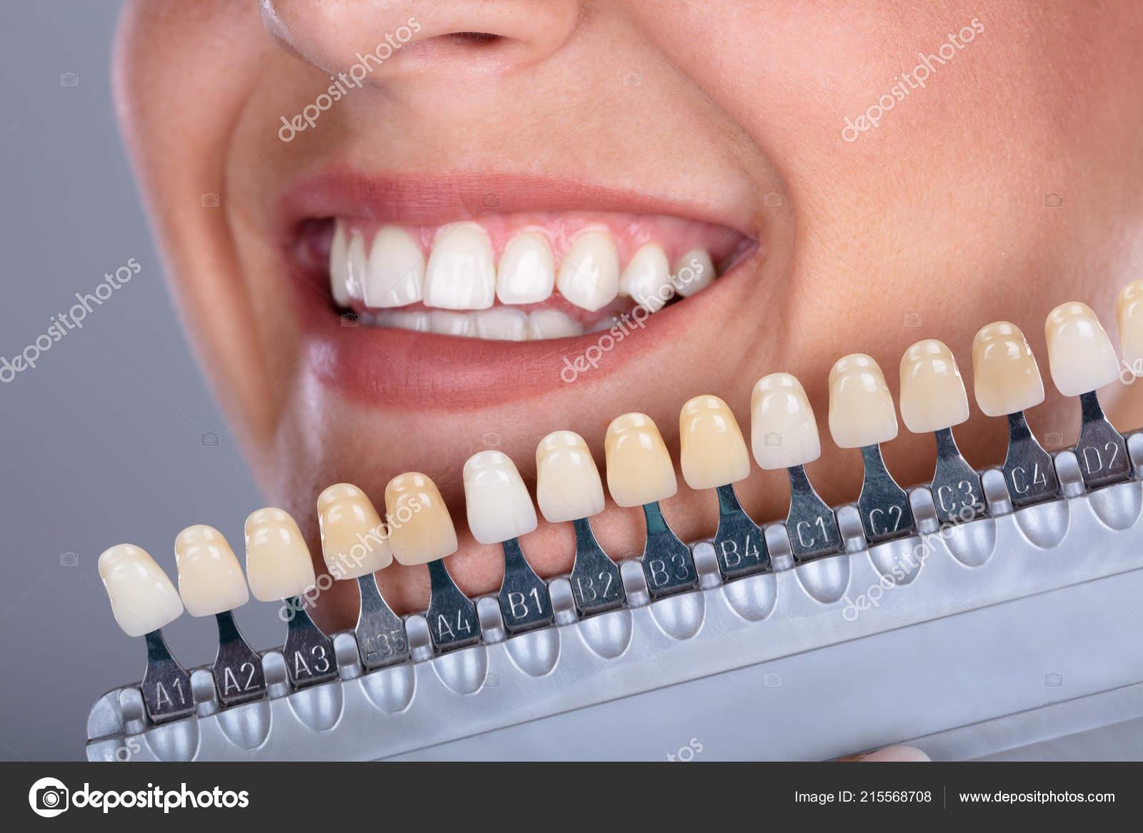 Gelb zahnfarbe a3 Die passende