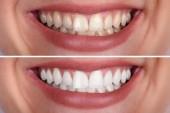 Nahaufnahme einer lächelnden Frau Zähne vor und nach der Aufhellung