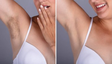 Before And After Concept Of Woman's Underarm Hair Removal On Grey Background