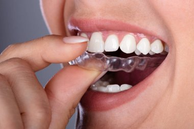 Close-up Of A Woman's Hand Putting Transparent Aligner In Teeth