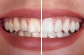 Fotografie Nahaufnahme einer lächelnden Frau Zähne vor und nach der Aufhellung