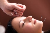 Photo Close-up Of A Womans Face Receiving Acupuncture Treatment On Her Face In Spa