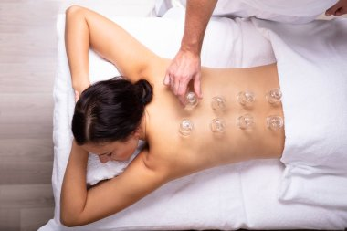 Relaxed Young Woman Receiving Cupping Treatment On Her Back In Spa