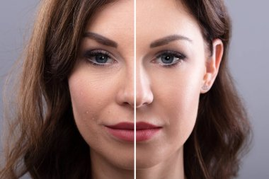 Portrait Of A Young Woman's Face Before And After Cosmetic Procedure