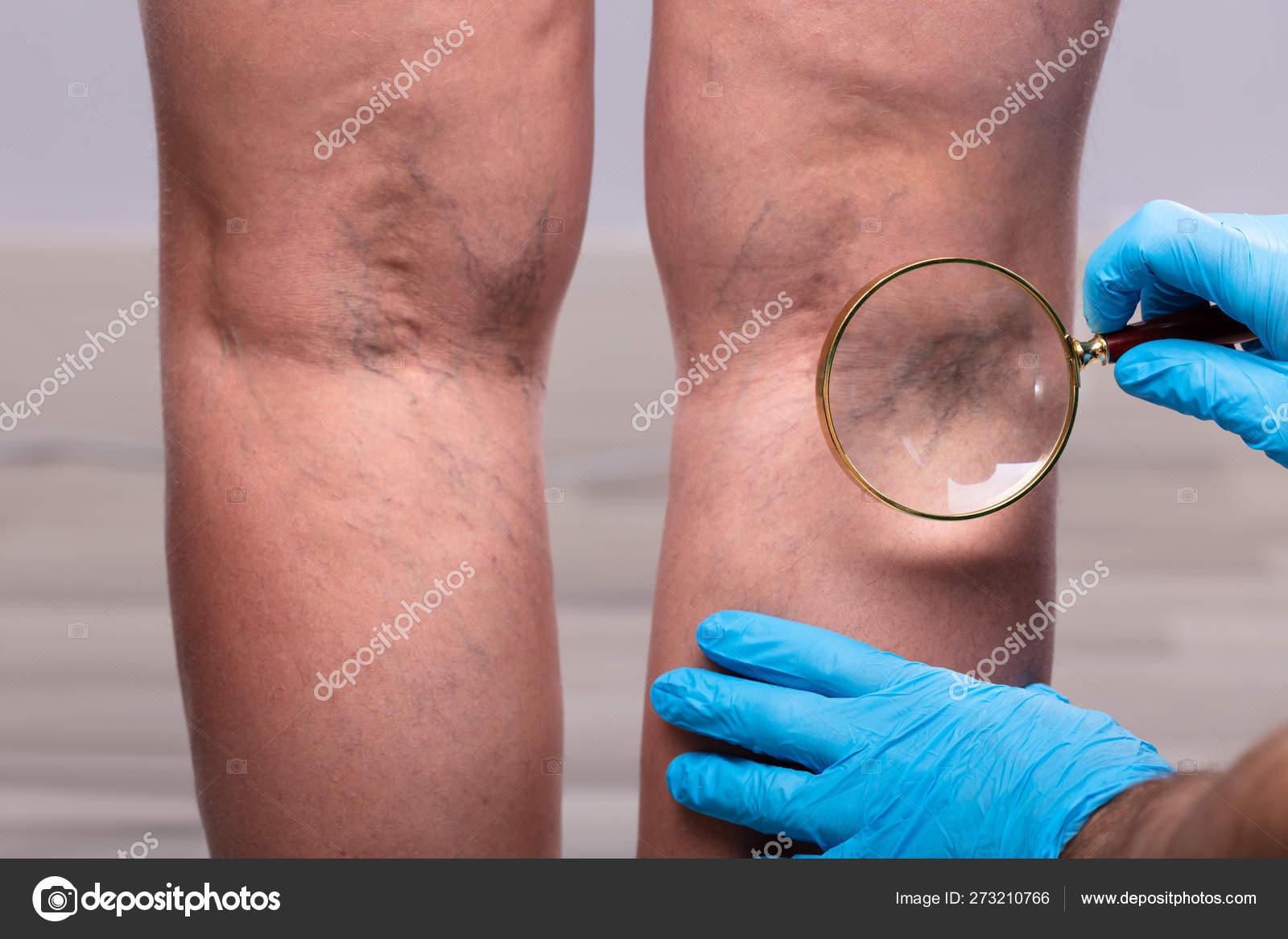 visszérgyulladás thrombophlebitis fotó