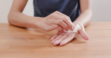 Woman suffer from hand perspiration
