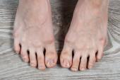 ápolt női lábak csúnya törött körmökkel és bőrkeményedésekkel. benőtt lábköröm. legalább kényelmetlenséget. pedikűr
