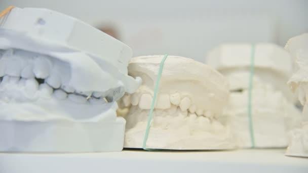 Dental gypsum model cast of human dental jaw. Laboratory prosthetics. Close-up