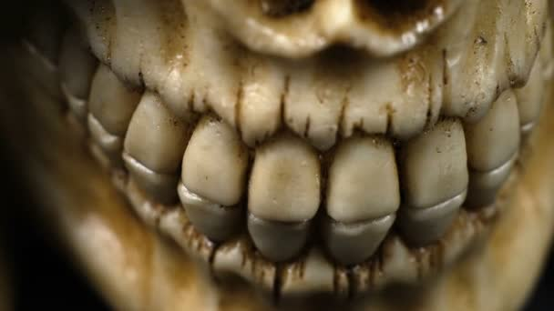 Close Up Detail On A Human Jaw