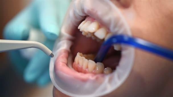 Příprava na instalaci složených závorek na Tzubů. Zubní péče, zavřít. Efekt pomalého pohybu