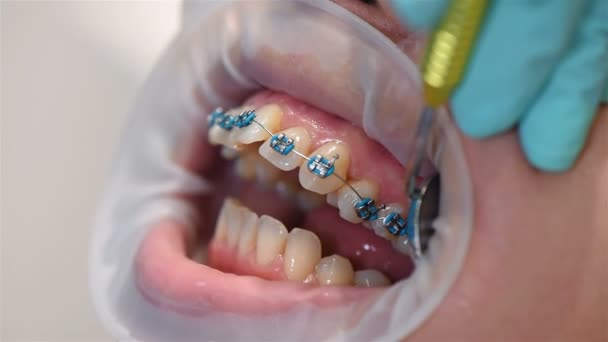 Dentist Examines Teeth With Braces. Extreme Close Up