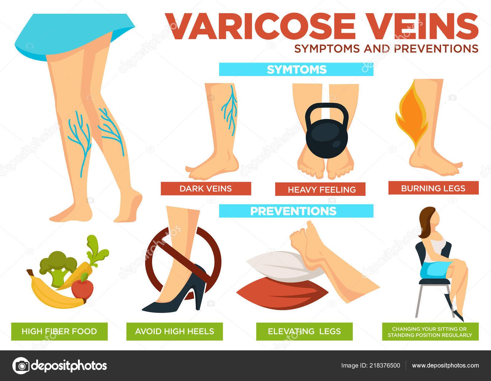 como evitar las varices en las piernas