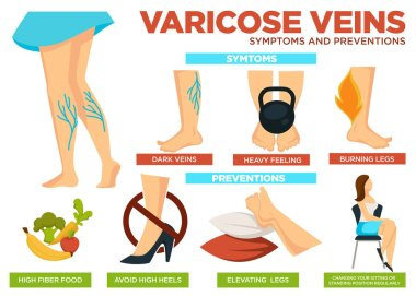 Varicose veins symptoms and preventions poster with info vector. Heavy feeling and burning legs are traits of disease. Eat food high in fiber, avoid heels and elevate ankles, change sitting position