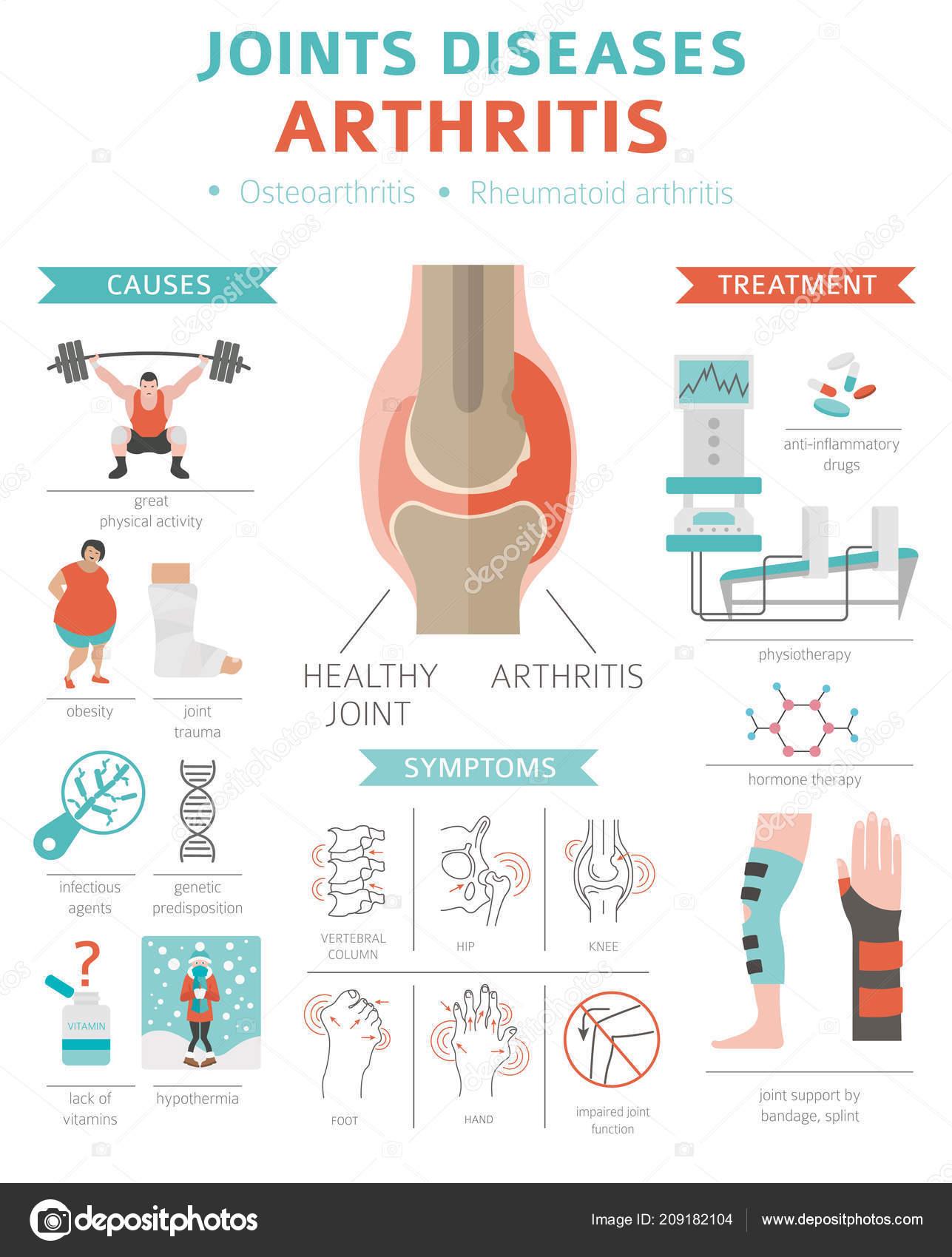 arthrosis földigiliszták kezelése térd ízületi gyulladás mi ez és hogyan kell kezelni