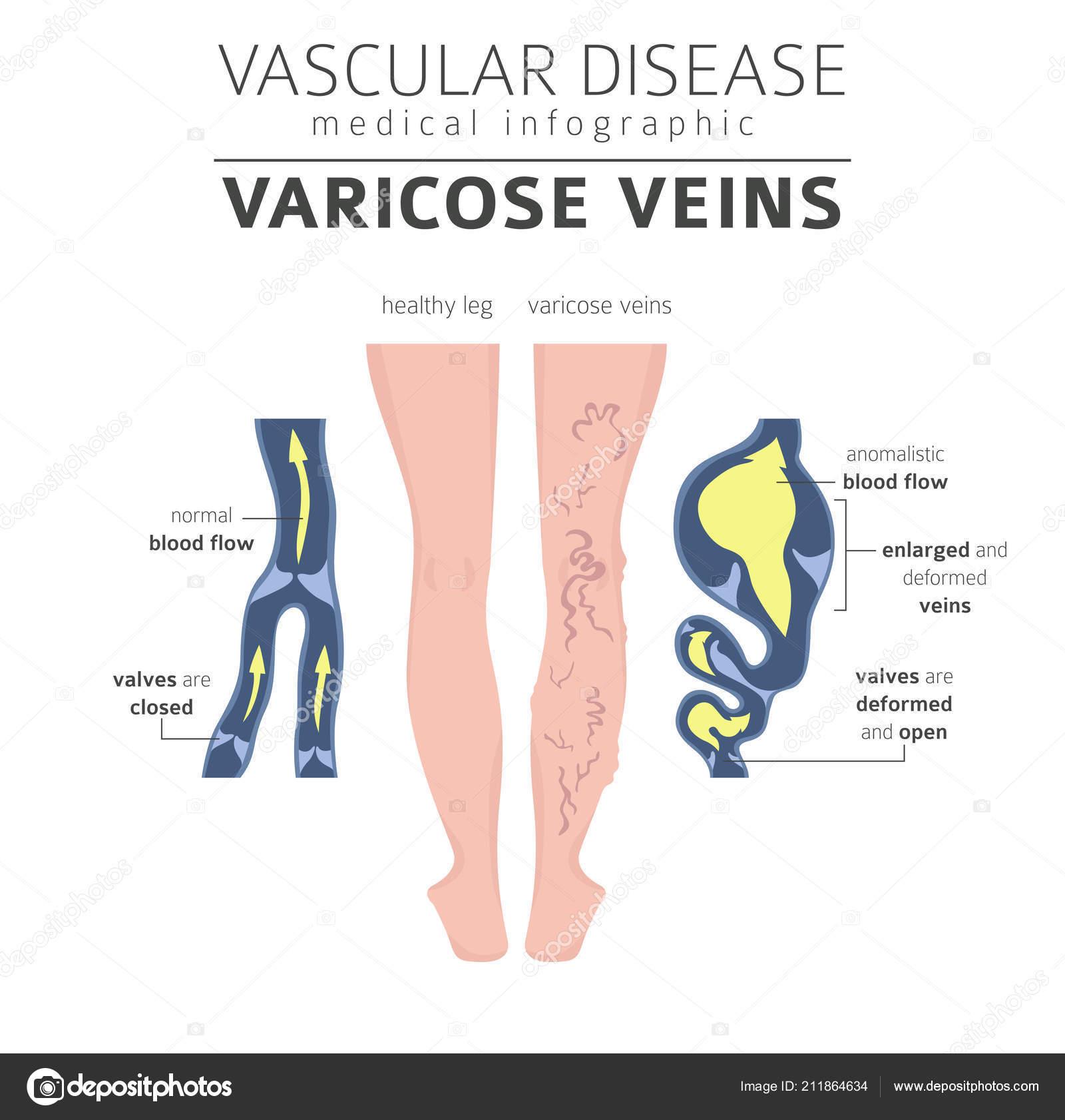 Vascular Diseases Varicose Veins Symptoms Treatment Icon Set Medical