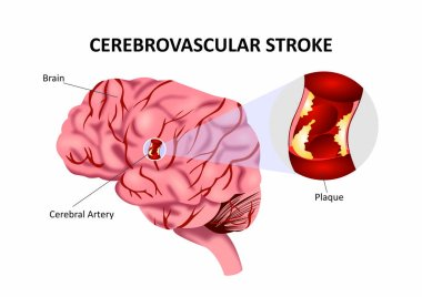 Cerebrovascualar Stroke or Accident