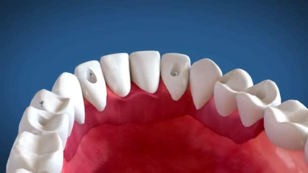 Zahnkrone, medizinisch korrekte 3D-Animation
