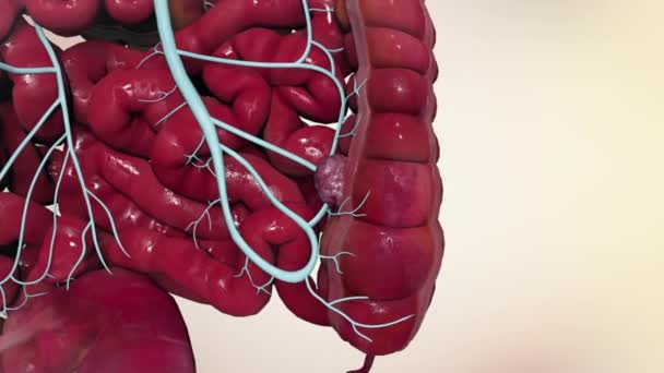 Effects Of Colon Cancer On Liver 3d Medical Animation Stock Video C Volkan83 274528110