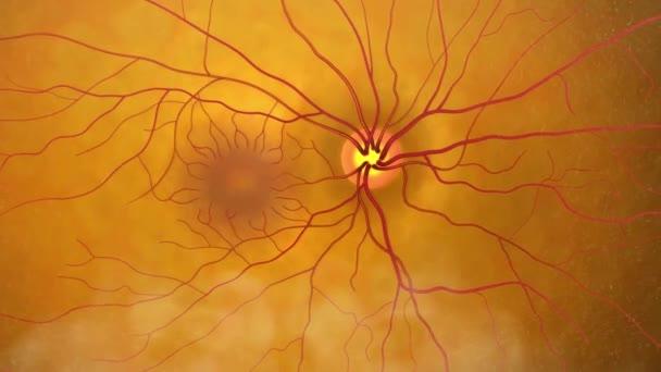 Eye disease with advanced nerve damage, glaucoma